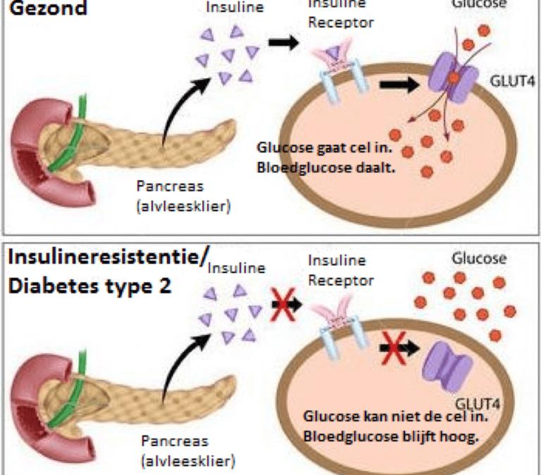 Insulineresistentie ziek zijn zonder dat je het weet