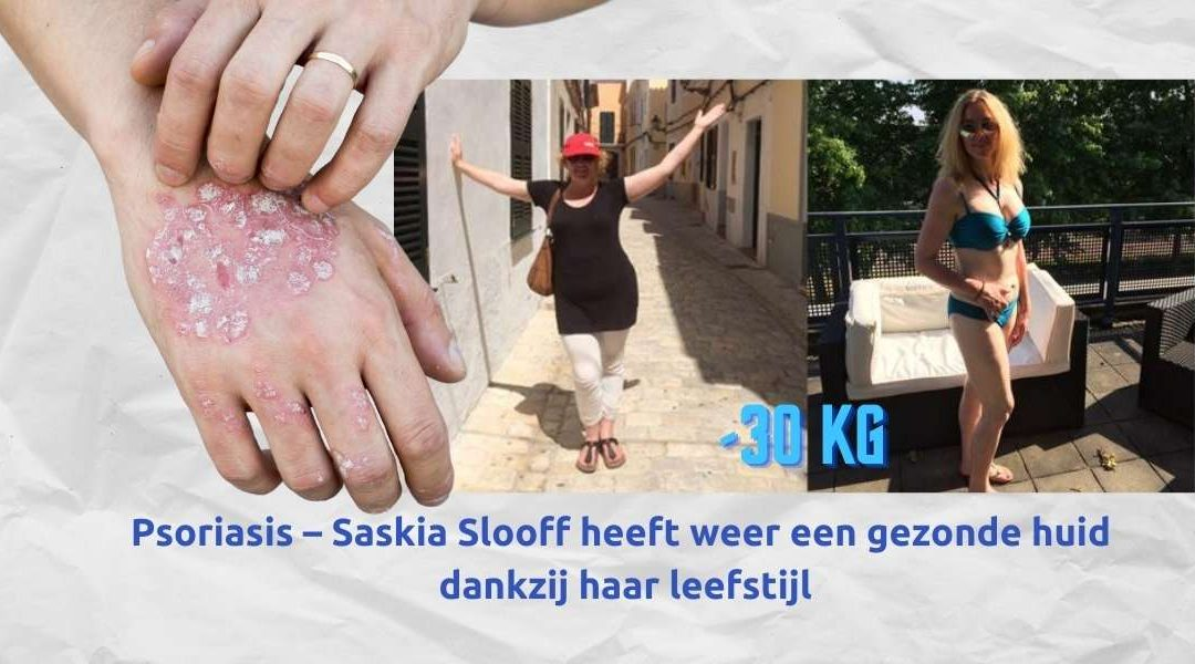 Psoriasis – Saskia Slooff heeft weer een gezonde huid dankzij haar leefstijl